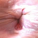 Рис.1 Анальная трещина (на рисунке виден анус, который закрыт, а также дефект или разрыв анодермы).