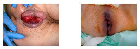 Кровотечение при геморрое лечение, фото сразу до и после операции.
