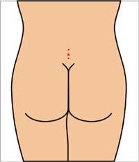 Эпителиальный копчиковый ход (ЭКХ) - лазерная операция, лечение экх