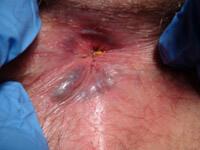 Острый геморрой лечение - фотография 1