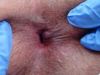 Острый геморрой лечение - фотография 4