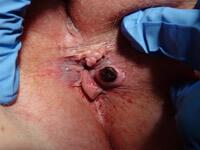 Удаление геморроидальных узлов - фотография 2