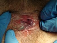 Удаление геморроидальных узлов - фотография 3