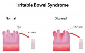 Рис. 2.Воспалительные заболевания толстой кишки, такие как синдром раздраженной кишки могут вызывать появление крови в стуле.
