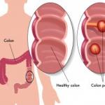 Рис. 5. Колоноскопия используется для обследования толстой кишки, выявления полипов и злокачественных опухолей.