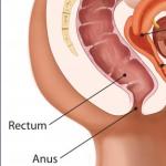 Рис. 6. Наиболее часто для выявления рака прямой кишки используется пальцевое исследование через задний проход.