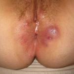 Рис. 3. Появление акне на коже при применении гормонов.