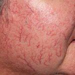 Рис. 4. Стойкое расширение сосудов кожи при применении гормонов.