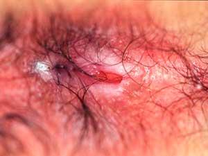 Рис. 5. Язва анального канала при сифилисе.