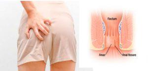 Рис. 1. Ботокс используют для лечения трещины ануса.