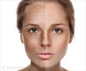 Рис. 1. Пигментация на коже - большая косметическая проблема.