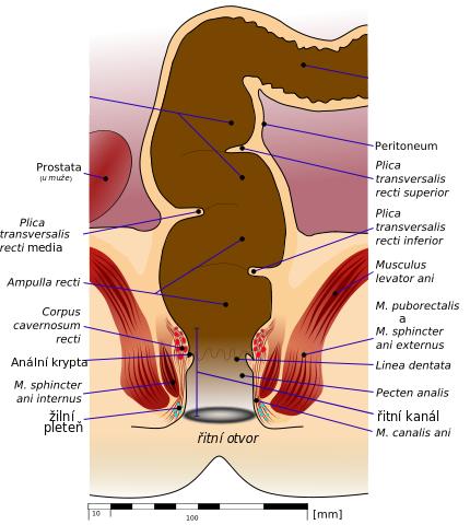 Анальный секс остатки фекалий