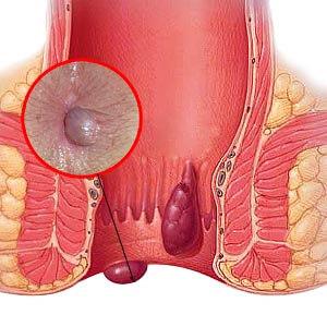 Рис. 2. Наружные геморроидальные узлы расположены снаружи от анального кольца.