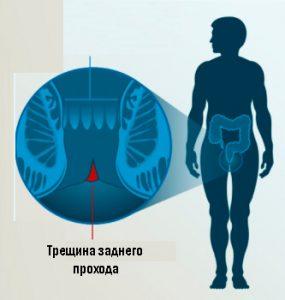 Рис.1. Трещина заднего прохода - вызывает боль.