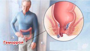 Рис. 1. Геморрой - это заболевание вен в прямой кишке.