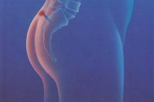 Рис. 2. Дермоидная киста на копчике у женщин может провоцировать рак.