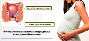 Рис. 1. Внутренние и наружные шишки во время беременности.