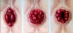 Рис. 2. При геморрое воспаляются вены в прямой кишке.