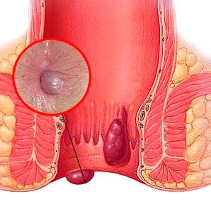 Рис. 1. Внутренние и наружные геморроидальные узлы.