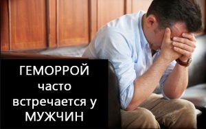 Рис. 3. Геморрой у мужчин, лечение возможно.