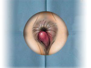 Рис. 1. Геморрой - это заболевание вен прямой кишки.