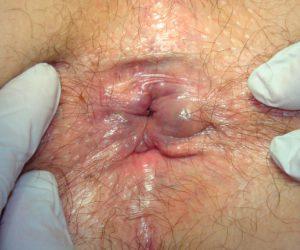 Рис. 2. Наружный геморрой фото - тромбоз узлов.