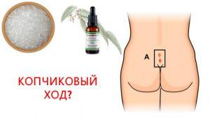 Рис. 1. Масло эвкалипта помогает снять воспаление в копчиковом ходе без операции.