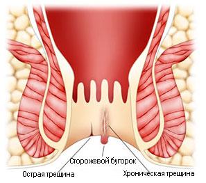 Рис. 1. Трещина заднего прохода бывает острой и хронической.