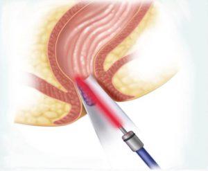 Рис. 3. Лазерная операция при геморрое проходит быстро и безболезненно.