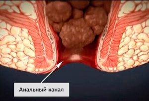 Рис. 2. Кровь при геморрое выделяется из заднего прохода при дефекации.