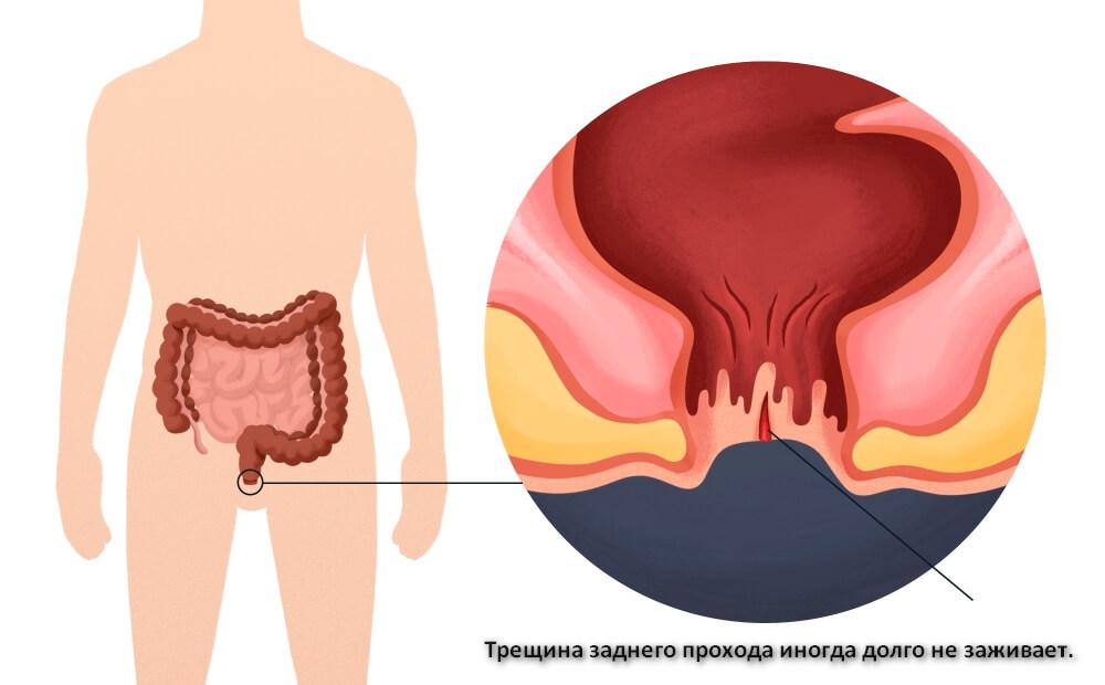 Трещина заднего прохода причины симптомы и лечение