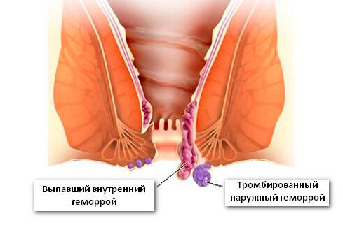 воспаление кишечника геморрой