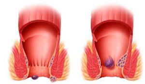 Рис. 1. При геморрое появляются внутренние и наружные геморроидальные узлы.