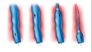 Рис. 3. Принцип действия луча лазера на сосуд в геморроидальном узле - просвет сосуда запаивается.