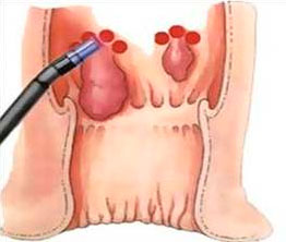 Рис. 4. Лазерное удаление геморроя - прогрессивный метод лечения.