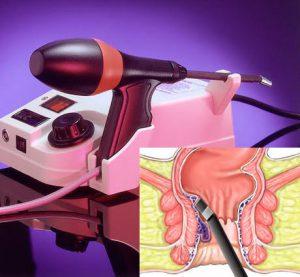 Рис. 3 Малоинвазивная хирургия геморроидальных улов - самое эффективное лечение геморроя