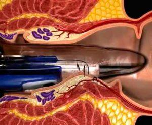 Рис. 2 Геморрой 4 степени. Золотой стандарт лечения - это дезартеризация и мукопексия с использованием лазерной методики