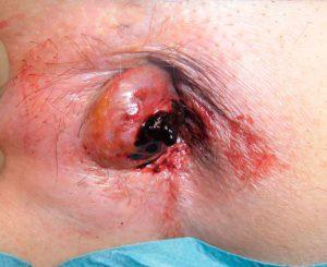 Рис. 2 Кровотечение из узла геморроя опасно кровопотерей и анемией