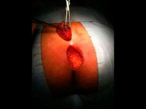 Рис. 2 Стандартная хирургия. Рана после иссечения большого объема тканей при ЭКХ долго не заживает