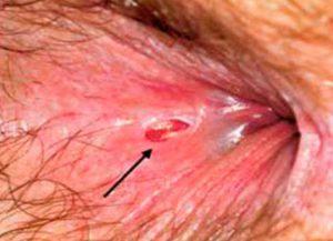 Рис. 1 Трещина заднего прохода после родов - частое явление