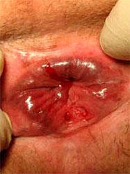 Рис. 2 Кровянистые пятна на туалетной бумаге, а иногда и в кале - это признаки трещины заднего прохода после родов