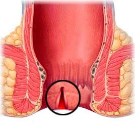 Рис. 1 Трещина заднего прохода возникает вследствие разрыва слизистой оболочки конечного отдела прямой кишки различной глубины
