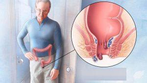 Рис. 1 Геморрой 3 степени причиняет существенную боль и не поддается консервативному лечению
