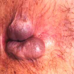 Рис. 2 При геморрое 3 степени самостоятельно геморроидальные шишки не вправляются