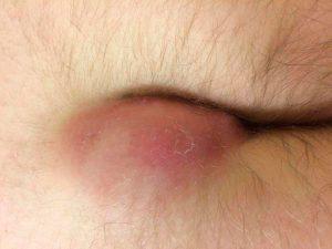Рис. 3 Боли при ходьбе и покраснение в области копчика - симптомы воспаления копчикового хода