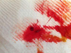 Рис. 1. Кровяные и слизистые выделения характерны для трещины заднего прохода