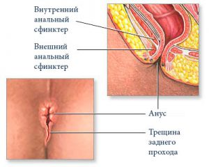 Рис. 3. Диагностика и лечение трещины заднего прохода возможно только в специализированной клинике