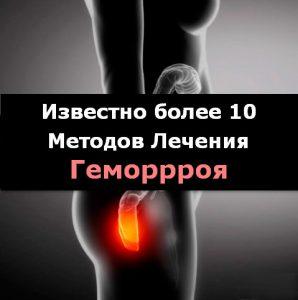 Рис. 1. Известно много методов лечения геморроя