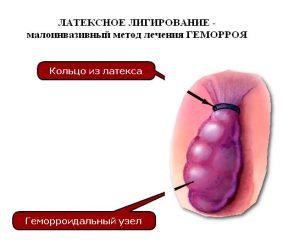 Рис. 2. Латексное лигирование - малоинвазивный метод лечения геморроя