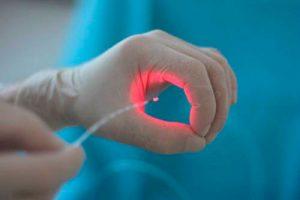 Рис. 3 Лазерная вапоризация геморроя. Лечение геморроя на любой стадии, бескровно и без осложнений